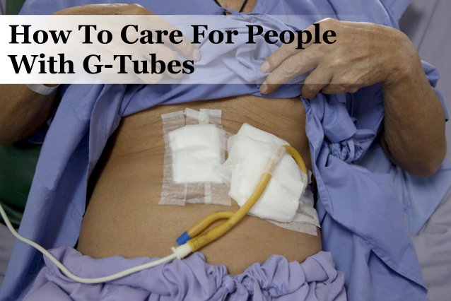 How To Care For People With G-Tubes
