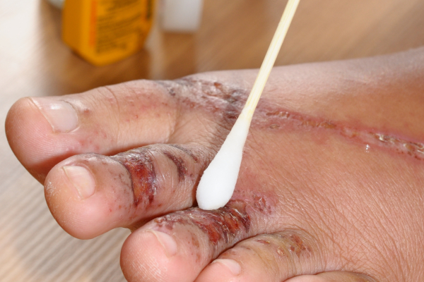 4 Common Myths about Wound Care